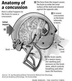Travelers sues NFL over ex-players' brain injury lawsuits | Reuters | Shoulda, Coulda Explored This | Scoop.it
