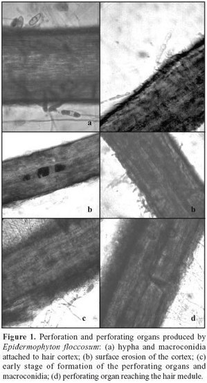 Brazilian Journal of Microbiology - Pathogenic aspects of Epidermophyton floccosum langeron et milochevitch as possible aethiological agent of Tinea capits |  Epidermophyton | Scoop.it