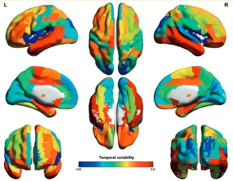 Study reveals new measure of intelligence involving temporal variability of brain areas | KurzweilAI | Chasing the Future | Scoop.it