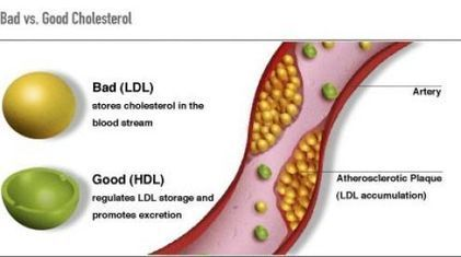 Buy Cheap Cholesterol Tablets Online, Buy Cholesterol Lowering Tablets | Cholesterol Tablets Online | Scoop.it