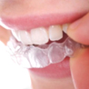 Everything About Braces