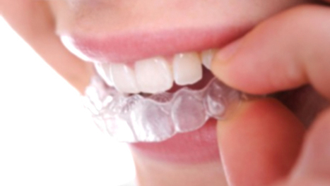 Everything About Braces - BracesMania.com | Everything About Braces | Scoop.it