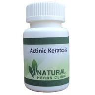 Natural Herbs For Actinic Keratosis | Natural Herbs Clinic | Scoop.it