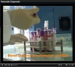 DIAGNOSTIC ANTÉNATAL: Une simple prise de sang pour détecter les maladies génétiques - Reproductive Biomedicine | Actualités Santé | Scoop.it