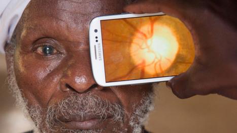 Peek Retina exámenes oculares con un smartphone | Tecnocinco | Scoop.it