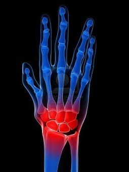 Arthritis: Stem Cell Therapy, the Next Medicine for Arthritic Treatments - | MetroMD | Scoop.it
