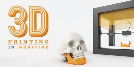 7 Ways 3D Printing is Revolutionizing Healthcare   3D Printing & Health - Impression 3D & Santé   Scoop.it