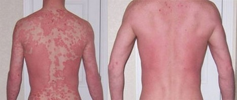 Psoriasis Treatment | How Phase I can manage Everything | Scoop.it