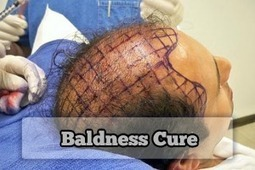 New Method Of Baldness Cure | Baldness Cure | Scoop.it