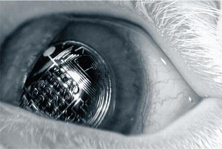 What if You Had a Reality-Augmenting Lens Right In Your Eye? | Popular Science | Social media and education | Scoop.it