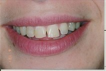 Idaho Falls Dental Veneers, Porcelain laminates, ID | Dentists in idaho falls | Scoop.it