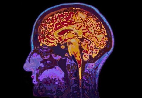 Alzheimer's disease could be treated with gene therapy, suggests animal study | Doctor Unite | Scoop.it
