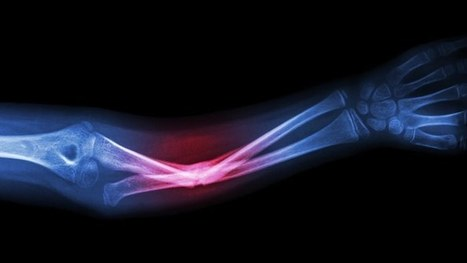 Medical - Gizmag | Longevity science | Scoop.it