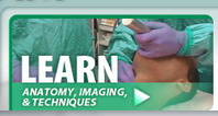 Learn about Airway Management, Techniques, Equipment and More - Airway Cam | Anesthesia Foamed | Scoop.it
