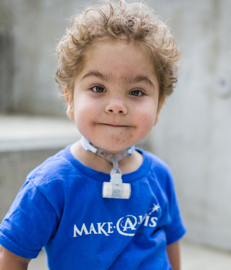 Meet 3 kids alive today thanks to a 3D printer | 3D4Doctor | Scoop.it