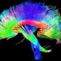 El ejercicio aeróbico mejora las conexiones del cerebro de los niños - Mirador Salud | Salud Publica | Scoop.it