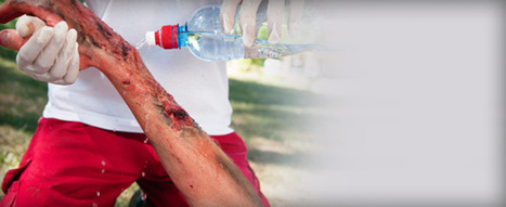 Burn injury compensation claims solicitors in UK   work injury compensation claim   Scoop.it