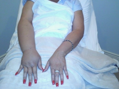 Lymphedema: Early Detection Valuable, But Methods Debated : Oncology Times | Lymphedma | Scoop.it