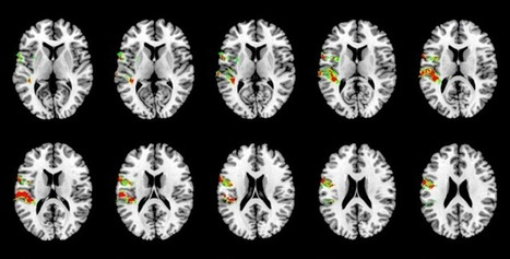 Reverse Inference: Neuroscience's Greatest Fallacy? | Knowing ... | Burak Yavuz | Scoop.it