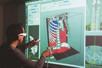 Galerie Photos - La réalité augmentée au service de la chirurgie sur Futura-Sciences | Catic Réalité augmentée | Scoop.it