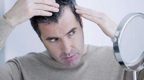 What Causes Hair Loss? 5 Baldness Myths Debunked | haarausfall-behandlung | Scoop.it