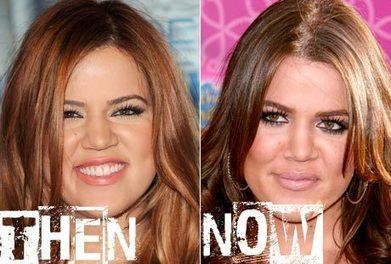 Khloe Kardashian Plastic Surgery Before & After Photos | Celebrity Plastic Surgery | Scoop.it