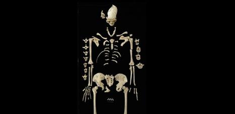 A-t-on découvert le plus ancien cas de leucémie de l'humanité ? | Aux origines | Scoop.it