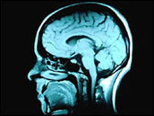 BBC NEWS | Health | Learning languages 'boosts brain' | TEFL & Ed Tech | Scoop.it