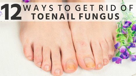 12 Ways to Get Rid of Toenail Fungus Fast Naturally | Beauty Tips | Scoop.it