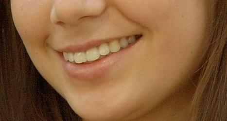 Le mercure dentaire est-il toxique pour la santé ? | Toxique, soyons vigilant ! | Scoop.it
