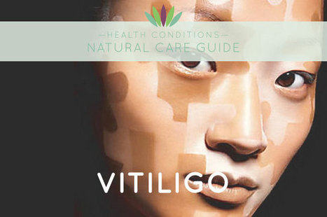 Vitiligo - Liveto110.com   Vitiligo   Scoop.it
