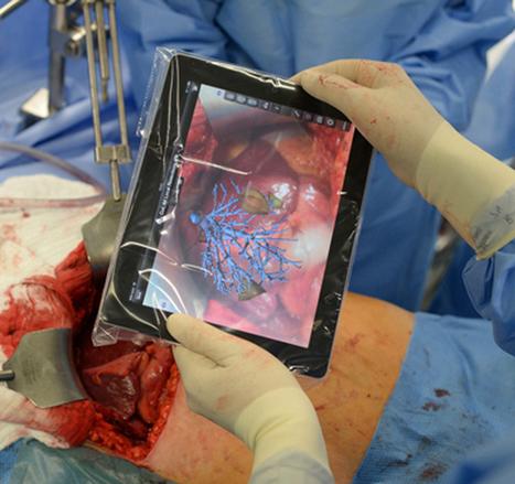 Una app de realidad aumentada para tablet ayuda a los cirujanos ... - Digital AV Magazine   Realidad Aumentada   Scoop.it