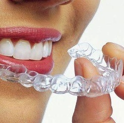 Invisalign Prices - How Much Does Invisalign Cost? | Cost Of Invisalign Is Your Worst Enemy. Here are Some Ways To Defeat It | Scoop.it