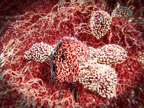 Targeting Immunosuppressive Cells May Boost Checkpoint Inhibitors | Melanoma BRAF Inhibitors Review | Scoop.it