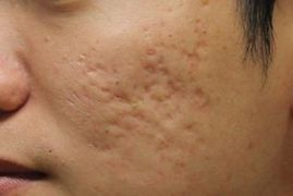 Acne Scar Removal | Acne Scar Laser Treatment | Chennai | Spring MED Spa | Scoop.it