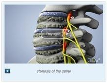 Spinal Bone Spur Surger | samedayspinesurgery | Scoop.it