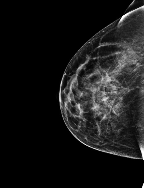Breast Cancer Responds Equally Well to Gel Rather Than Oral Drug, and With Less Side Effects | Health Practices in NZ | Scoop.it
