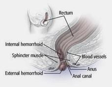Internal Hemorrhoids: Internal Hemorrhoids - What Are Hemorrhoids!? | Surfing The Web | Scoop.it