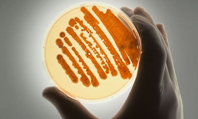 UK raises alarm on deadly rise of superbugs | The Barley Mow | Scoop.it