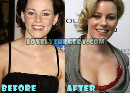 Elizabeth Banks Plastic Surgery Before and After Photos | Celebrity Plastic Surgery | Scoop.it