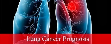 Lung Cancer Prognosis - Lung Cancer Stages | Lung Cancer Stages | Scoop.it