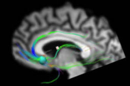 Precise brain mapping can improve response to deep brain stimulation in depression | New Directions in Psychology | Scoop.it