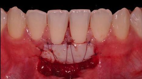 [Clinical Blog] Procedura unica per copertura radicolare, incremento di tessuto cheratinizzato ed approfondimeneto del fornice Dr STEFANI RICCARDO  @osteocom | Dental Implant and Bone Regeneration | Scoop.it