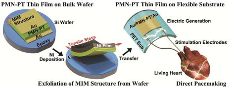 A self-powered cardiac pacemaker | KurzweilAI | Break through technology | Scoop.it