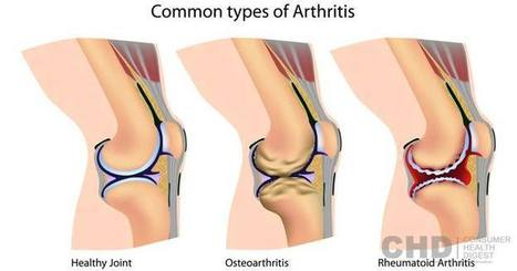 Common Types of Arthritis: Osteoarthritis, Rheumatoid Arthritis And More - CHD   Healthy Lifestyle and Fitness   Scoop.it