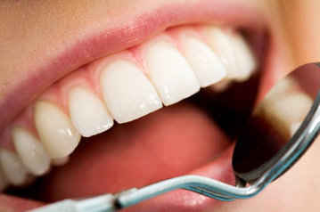 What You Must Know About Dental Cleaning Brooklyn | What You Must Know About Dental Cleaning Brooklyn | Scoop.it