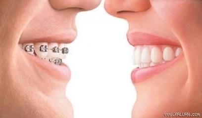 Răng có bị vàng không khi niềng răng? | Nha Khoa | Scoop.it