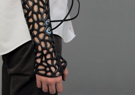 A 3D Printed Cast That Can Heal Your Bones 40-80% Faster | Communication design | Scoop.it