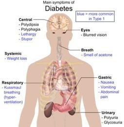 Diabetes Type 2 Symptoms => http://www.mysharedpage.com/diabetes-type-2-symptoms | Blogging_Diabetes | Scoop.it