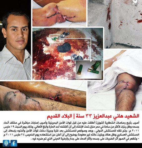 Hani Abdul Aziz murdered with ball bearings shot from shotguns by the Bahrain regime! | Human Rights and the Will to be free | Scoop.it